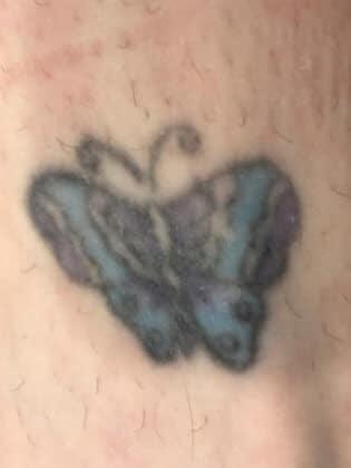 Tattoo Removal Ottawa - before