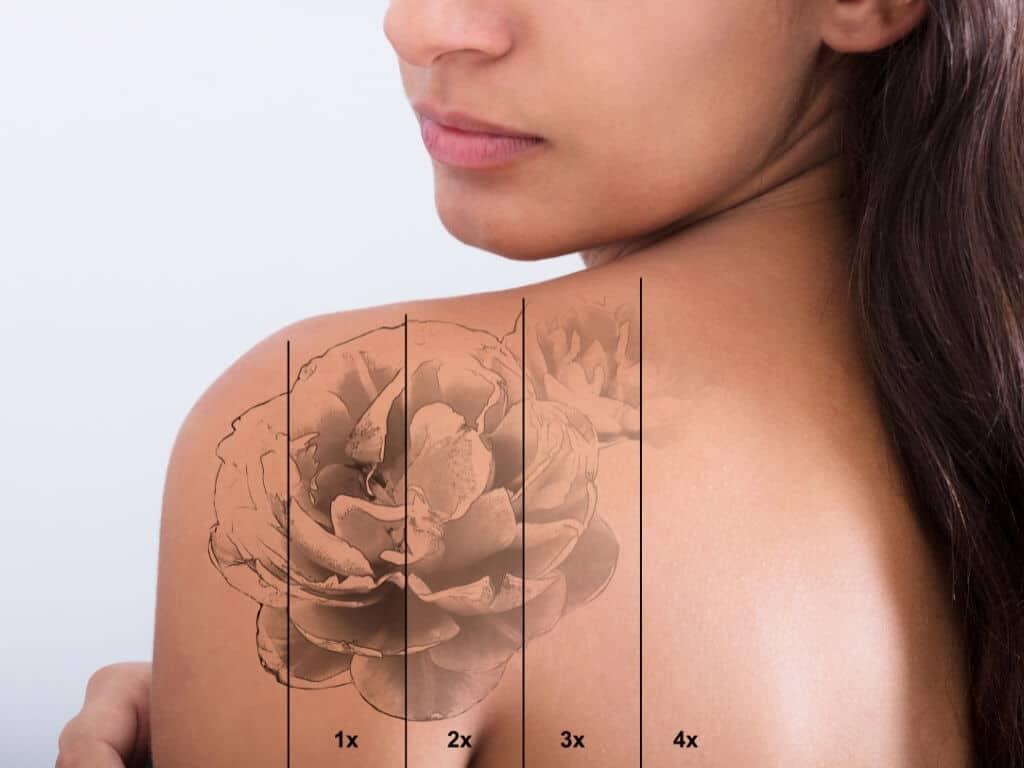Laser Tattoo Removal Ottawa
